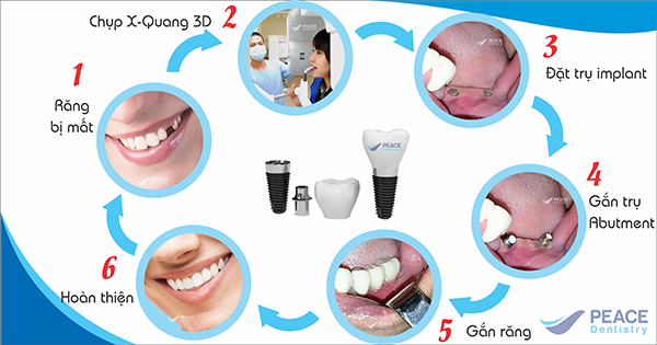 quy-trinh-cay-ghep-implant